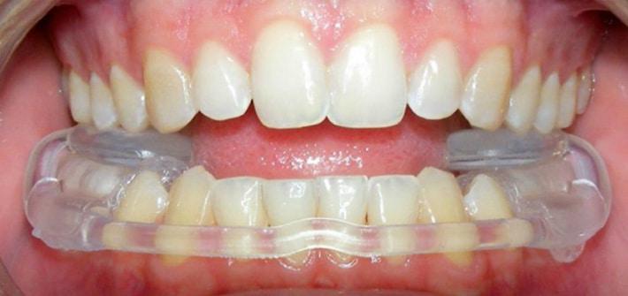 Термомоделируемые ночные шины для защиты зубов